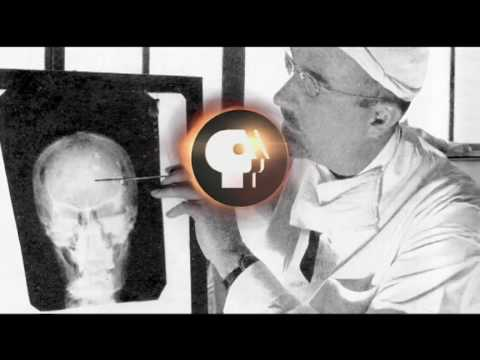 AMERICAN EXPERIENCE: The Lobotomist Preview